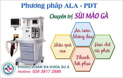 Phương Pháp ALA-PDT Cách Điều Trị Sùi Mào Gà An Toàn Ở Nam Và Nữ Giới.