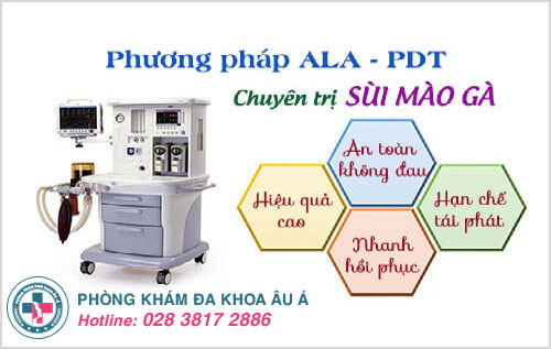 Phương pháp ALA - PDT điều trị dứt điểm bệnh sùi mào gà ở miệng và giúp tăng hệ miễn dịch cho cơ thể